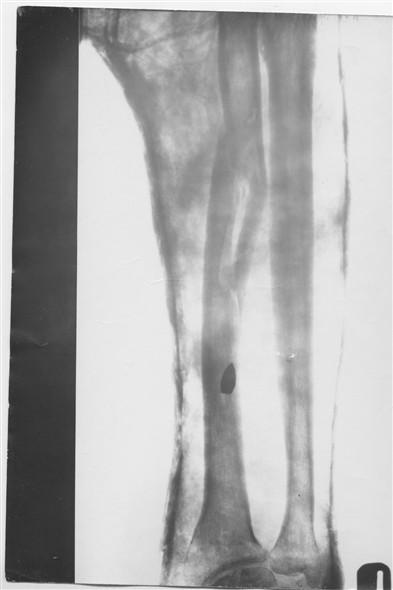 Photo:X Ray of PO GL Bateman's right arm